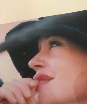 メラニー、皮膚がん治療を経て「怖かった」