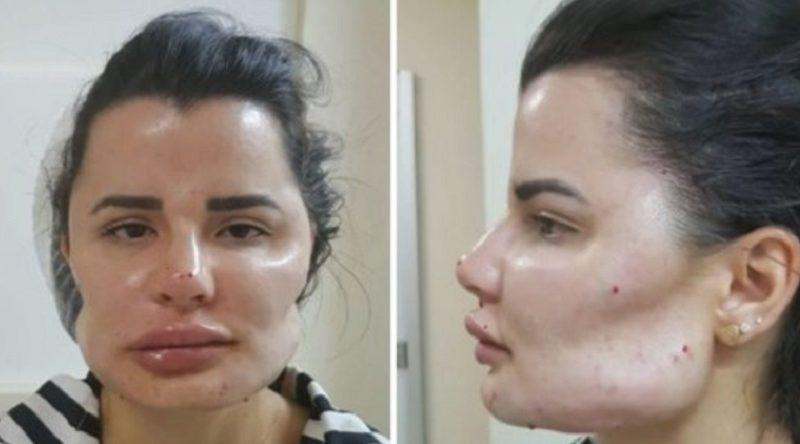 日系ブラジル人美容整形外科医を患者40名が訴える