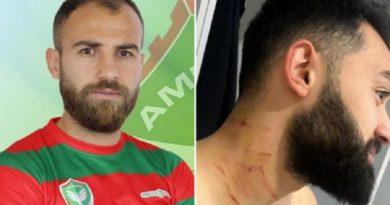 トルコのサッカー選手、手に凶器か