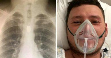 画像:『METRO』Roofer ends up in hospital after swallowing £1 coin in bizarre party trick(Picture: SWNS)