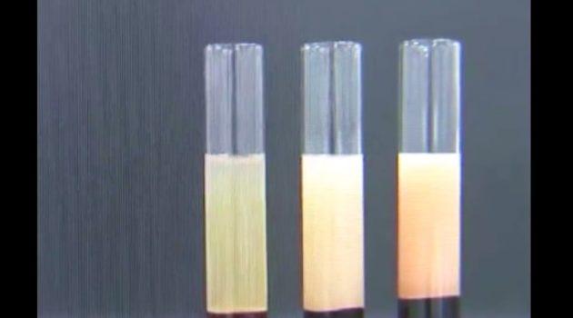 検査スタッフを仰天させた血液の変色