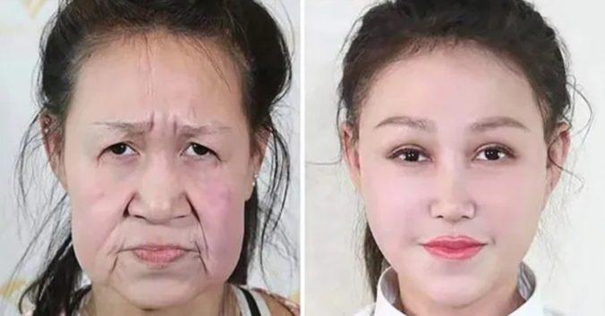 15歳なのに老婆のような「早期老化症」 美容整形手術でやっと美少女に