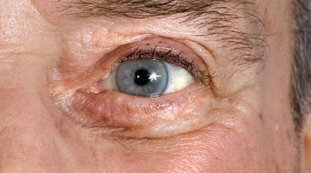 ひょんなことから視力が回復した男性(画像はイメージです)