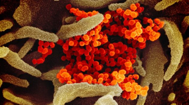 新型コロナウイルス感染症 (COVID-19)の闘病は長い(画像はイメージです)